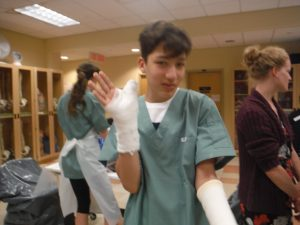 Camper displays casted thumb, hand, and wrist in lab